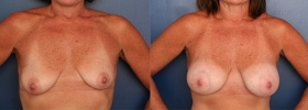 Silicone gel implants & peri-areolar mastopexy