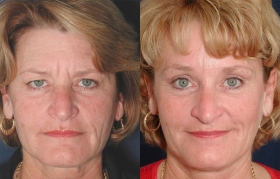 Before after brow lift Baltimore