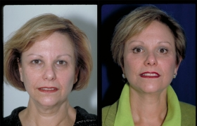 Composite Facelift, Upper and Lower eyelid Blepharoplasty and Browlift