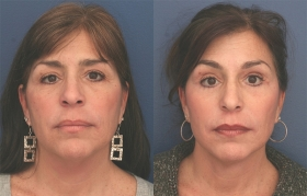 Composite Face and idface Lift, Lower Eyelid Blepharoplasty and Limited Incision Browlift