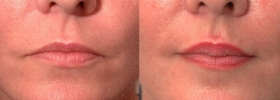 Restylane Lip Injections