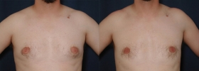Male breast reduction pictures