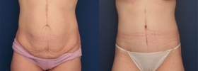 Circumferential abdominoplasty after weight loss