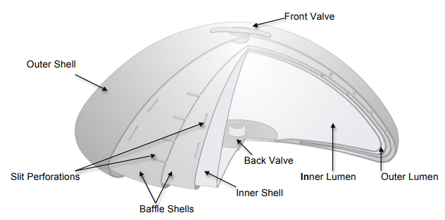 breast implant shape diagram