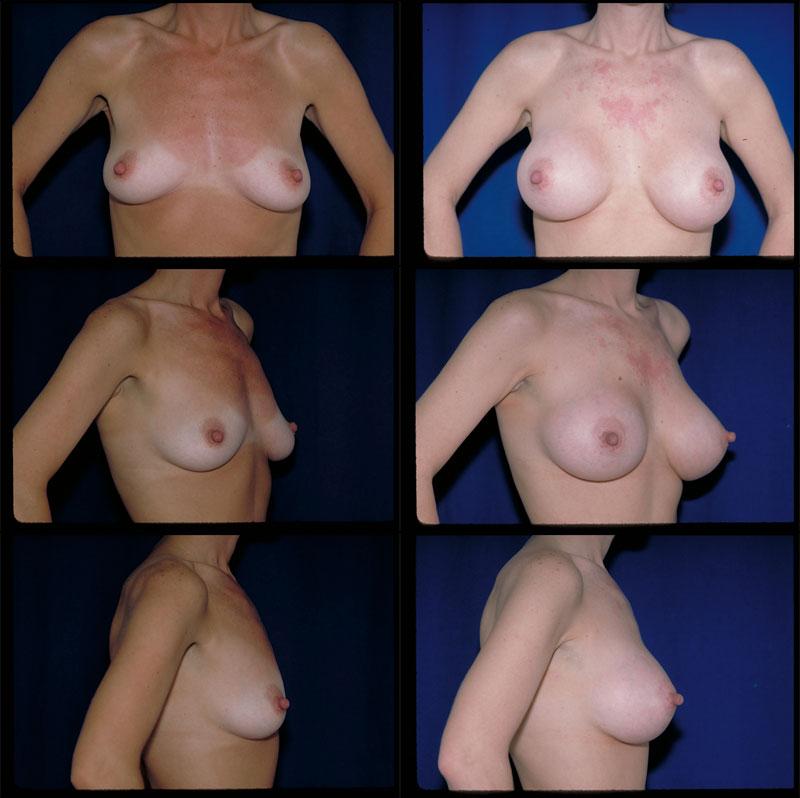 Breast Augmentation In Barrington, Il