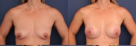 Breast Augmentation with Left Superior Crescent Lift