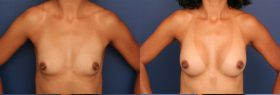 Breast Augmentation with Shaped Implants