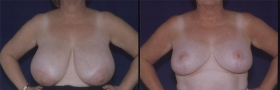 Modified Wise Breast Reduction