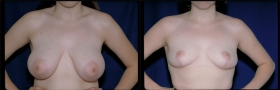 Breast reduction results