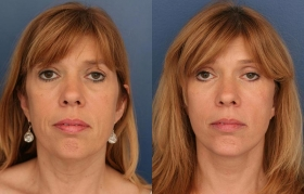 Before after facelift surgery Baltimore