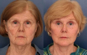 Composite Facelift, Midface Lift, Lower Eyelid Blepharoplasty, Limited Incision Endoscopic Browlift