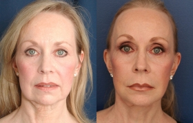 TEN YEAR follow up of Composite Face/Midface lift, Upper & Lower Blepharoplasty, Endo Browlift, Chin Implant