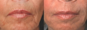 Before after Perlane injections