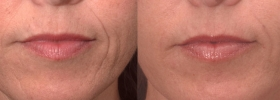 Restylane for nasolabial folds