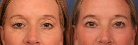 CO2 laser to lower eyelids and upper blepahroplasty with ptosis repair