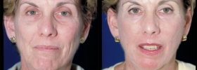 Before after laser skin resurfacing
