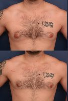 Gynecomastia-Correction-Lateral-Pull-Through