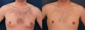 Ultrasonic Assisted Liposuction Breast reduction