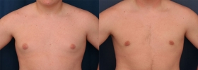 Male breast reduction Baltimore