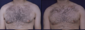 Before after gynecomastia surgery