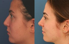 Rhinoplasty results 10 years later