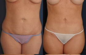 Tummy Tuck in Baltimore Before & After Photos