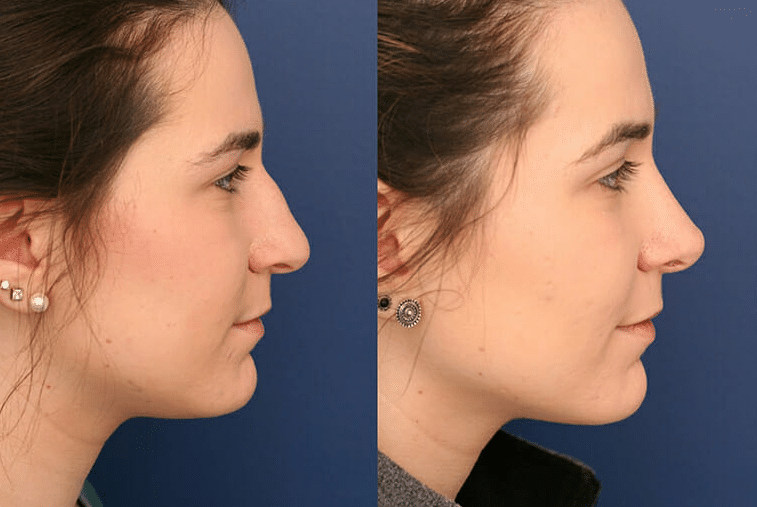 What To Expect Before And After Rhinoplasty Surgery Baltimore