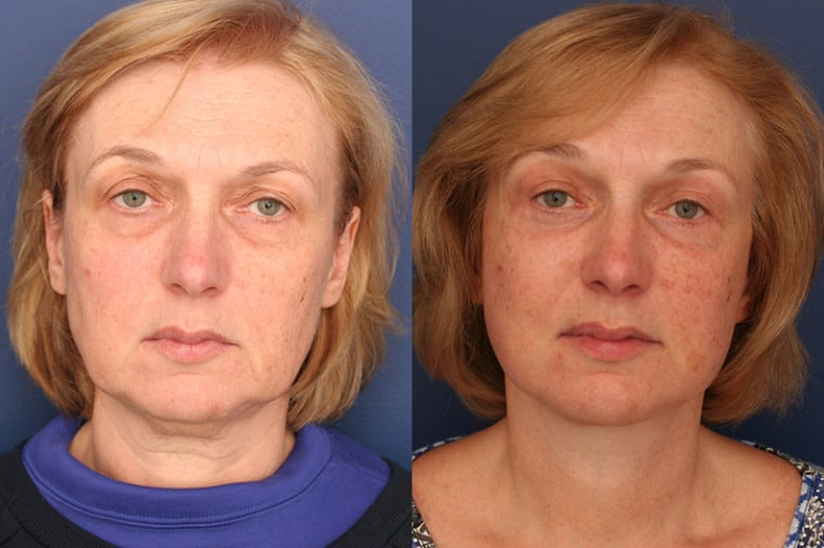 A close up image of a woman's face before and after facelift surgery